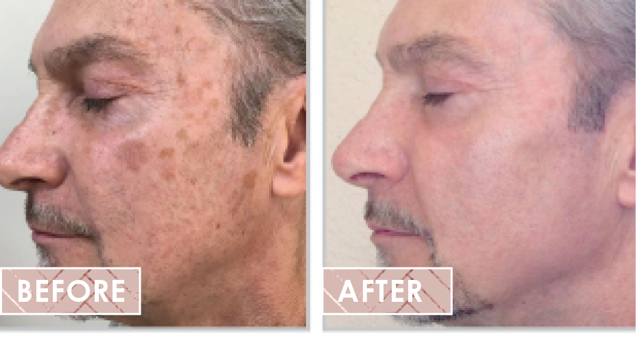 Halo laser before after