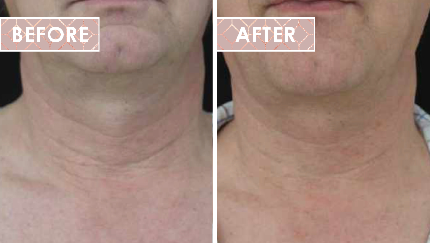 Vinesse-Aesthetics-and-Cosmetic-Clinic-HIFU-Before-After-04