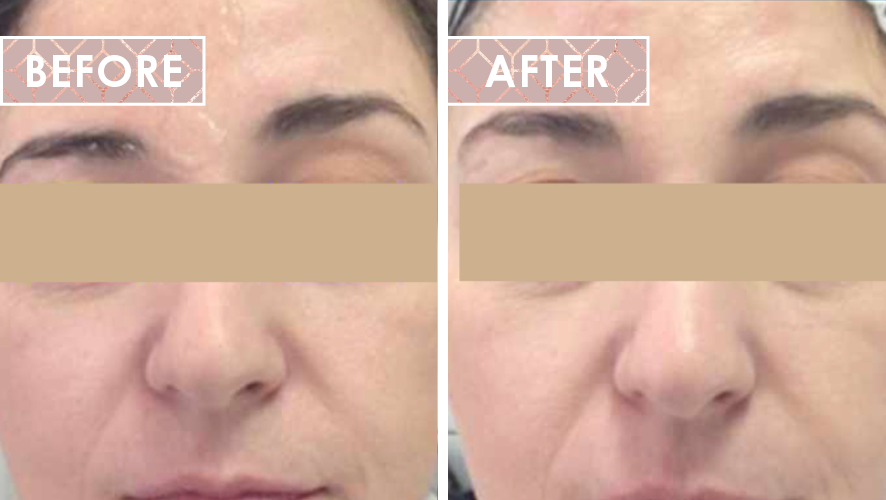 Vinesse-Aesthetics-and-Cosmetic-Clinic-HIFU-Before-After-06