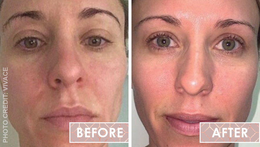 Vinesse-Aesthetics-and-Cosmetic-Clinic-Results-Skin-Microneedling-Vivace