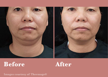 Thermage FLX- Before After Results Vinesse Aesthetics