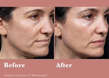 Thermage FLX- Before After Results Vinesse Aesthetics2