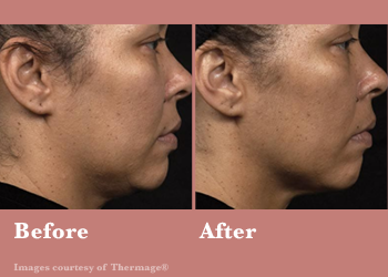 Thermage FLX- Before After Results Vinesse Aesthetics3