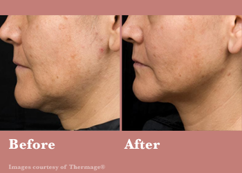 Thermage FLX- Before After Results Vinesse Aesthetics4