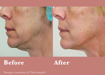 Thermage FLX- Before After Results Vinesse Aesthetics5