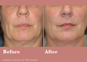 Thermage FLX- Before After Results Vinesse Aesthetics6