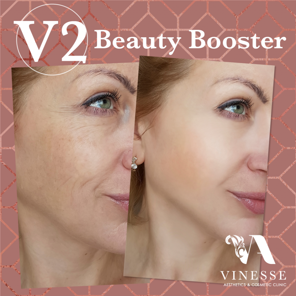 V2 beauty booster before after Vinesse Aesthetics